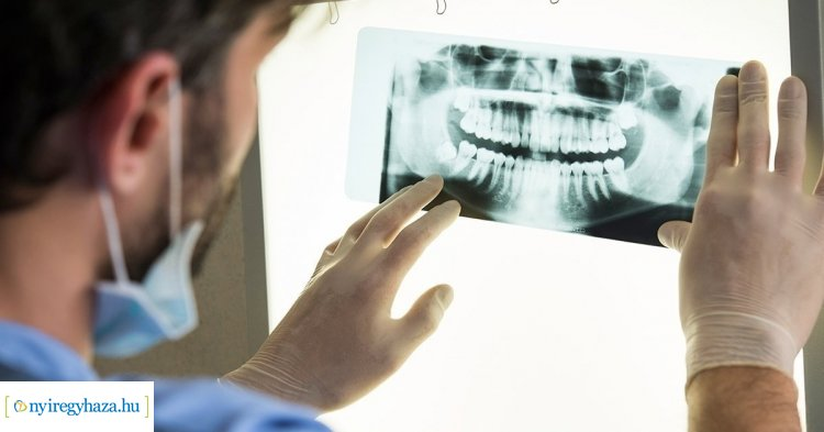 Ön tudta? – Csúcstechnológiás 3D-s fogászati CT működik a Városi Rendelőintézetben